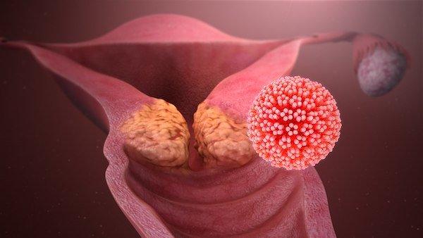 L'Australie sur le point d'eradiquer le cancer du col de l'uterus
