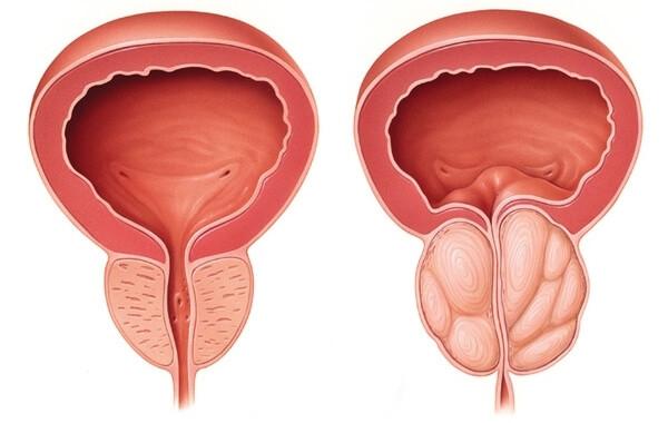 Dépistage du cancer de la prostate : le dosage systématique du PSA n'apporte rien